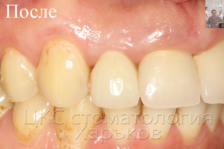 Красивый зуб после завершения работ зубной имплантации
