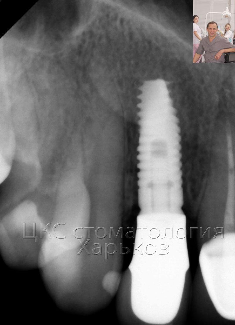 рентгенограмма зубного импланта в финале