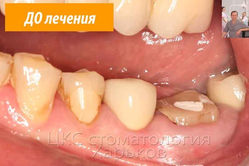 фото разрушенного зуба