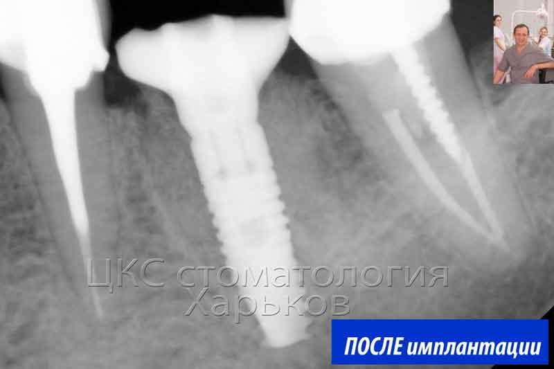 рентген снимок после операции