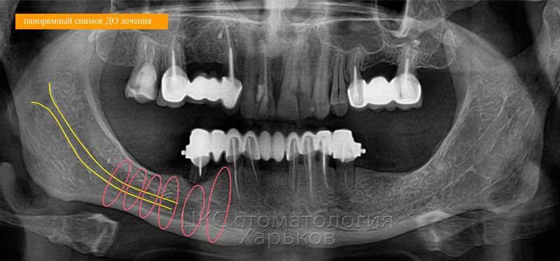 Оценка размеров челюстных костей по рентген. снимку