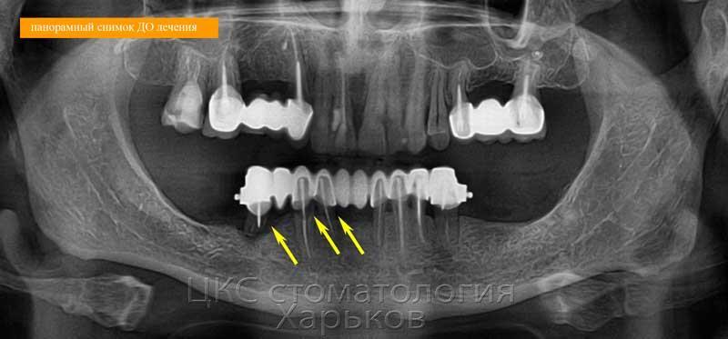 На рентген. снимке разрушенные зубы