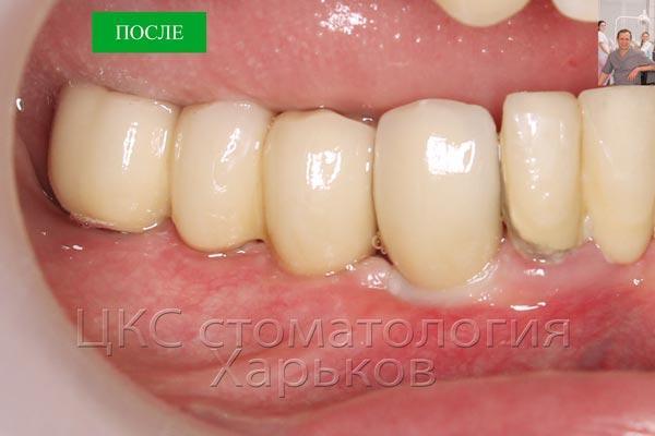 Зубной мост фиксированный на implants mis