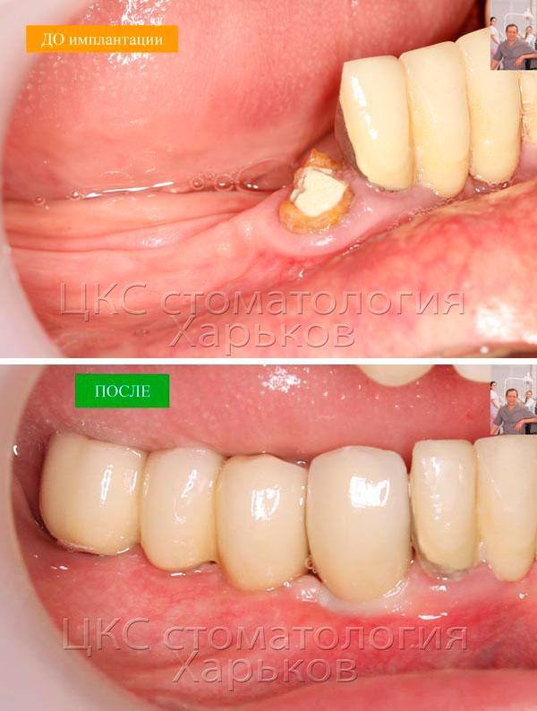 До и после протезирования