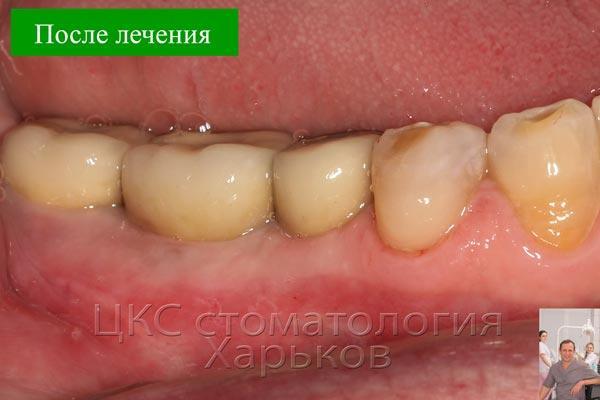 Фото демонстрирует возможности стоматологии Харькова