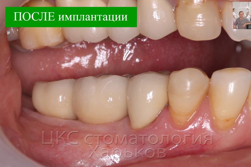 ПОСЛЕ имплантации моляров с процедурой аугментации