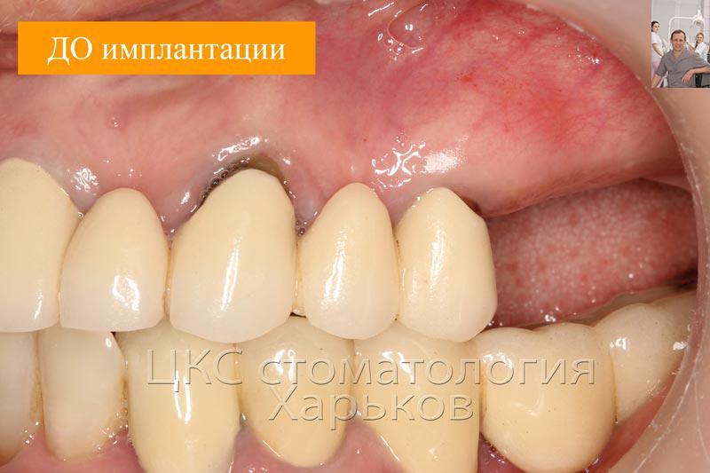 Адентия зубов, фото ДО