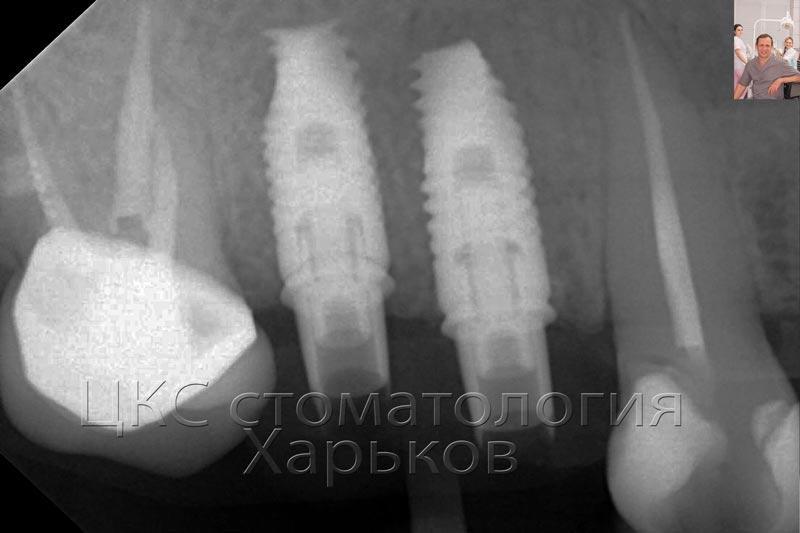 Рентгенограмма после лечения