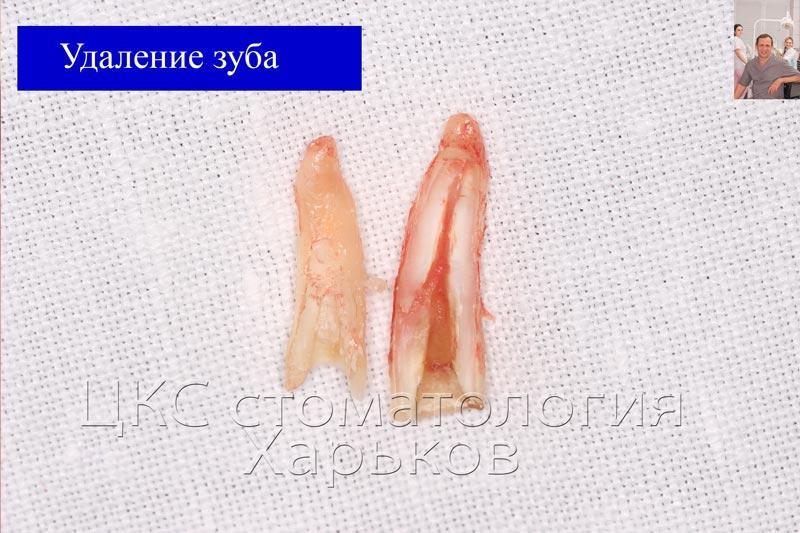 Удаленный зуб