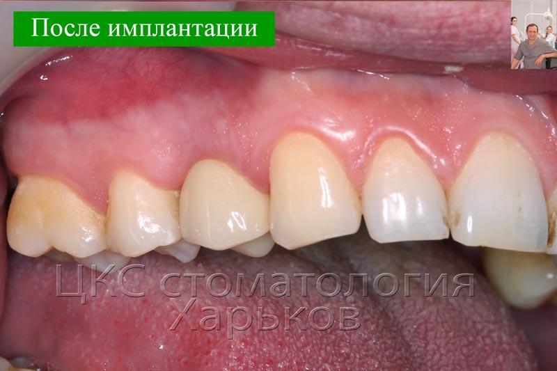 Цифровая стоматология в Харькове