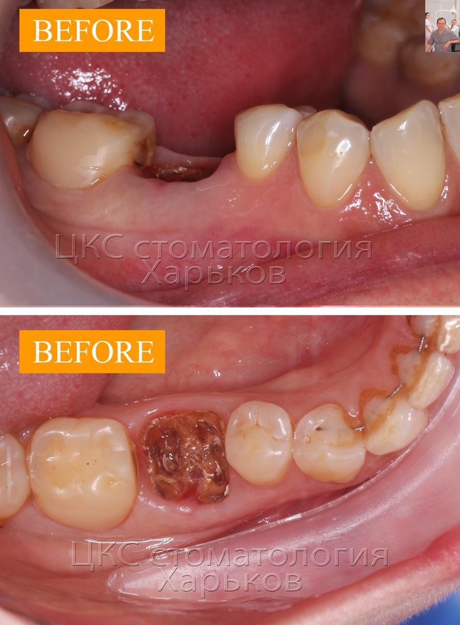 ДО имплантации зубов