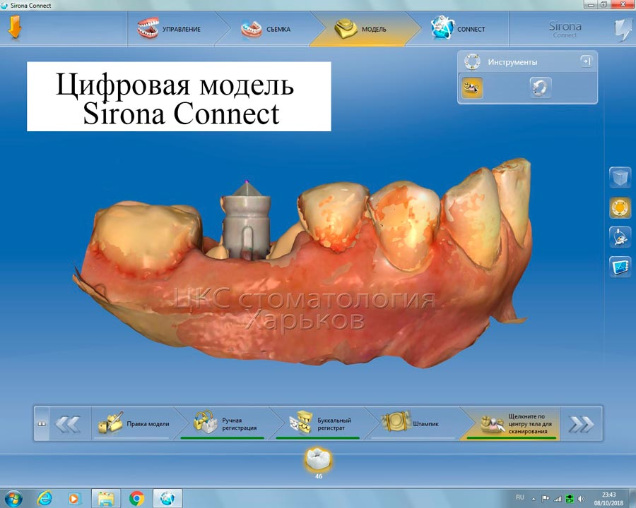 Цифровой протокол в зубной имплантации