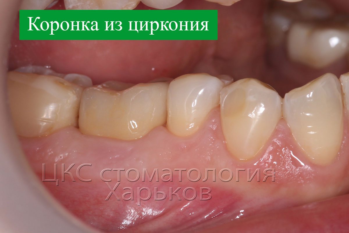 Коронка из циркония на зубном импланте