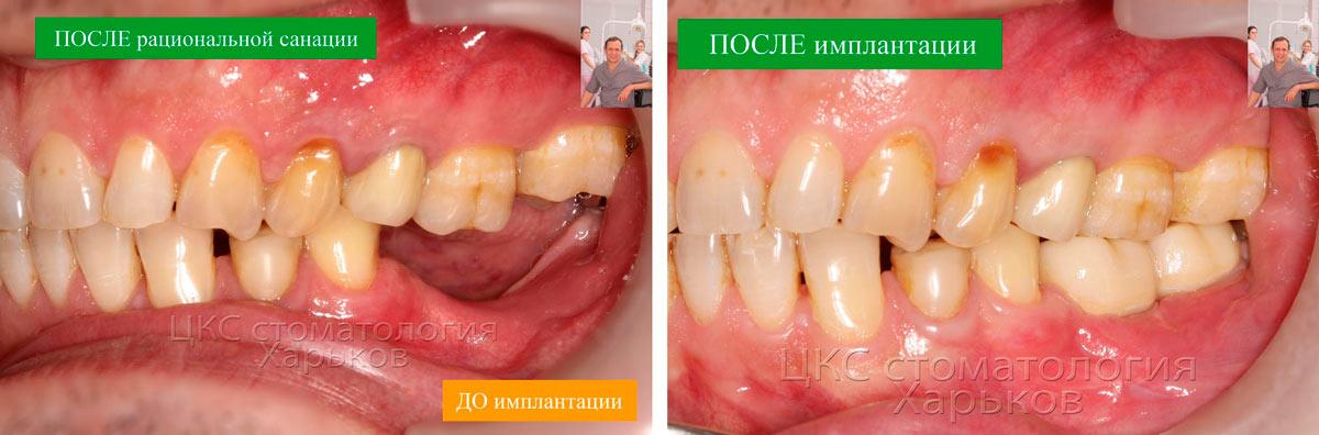 ДО и ПОСЛЕ реабилитации в стоматологии Харьков