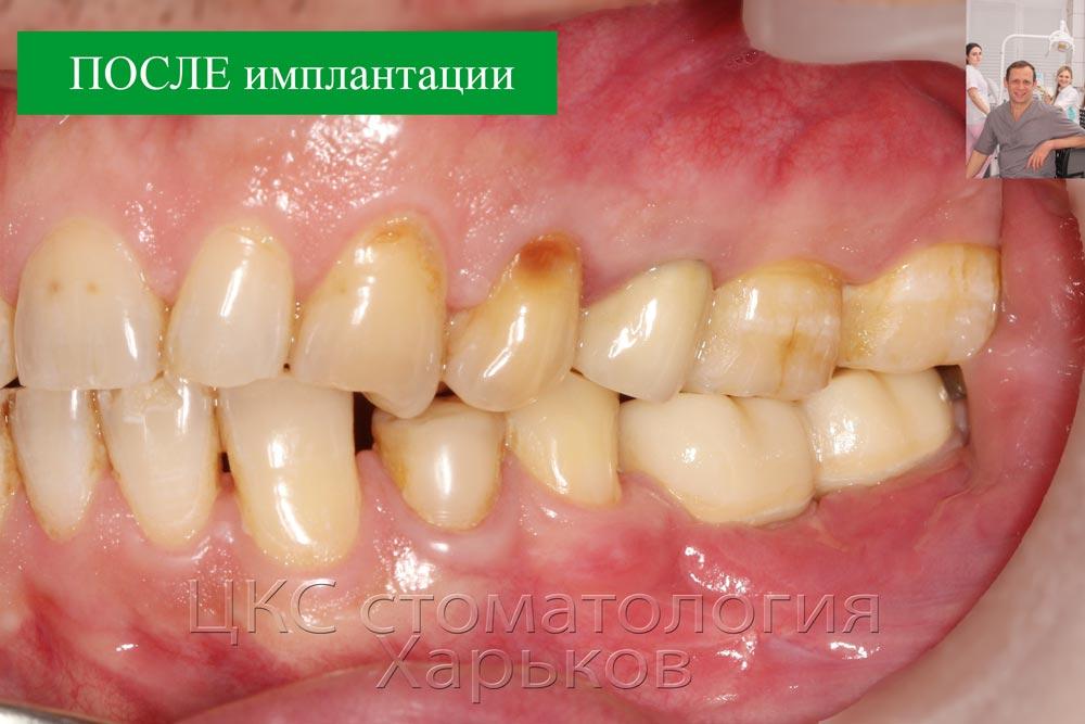 Состояние после лечения в стоматологии Харьков