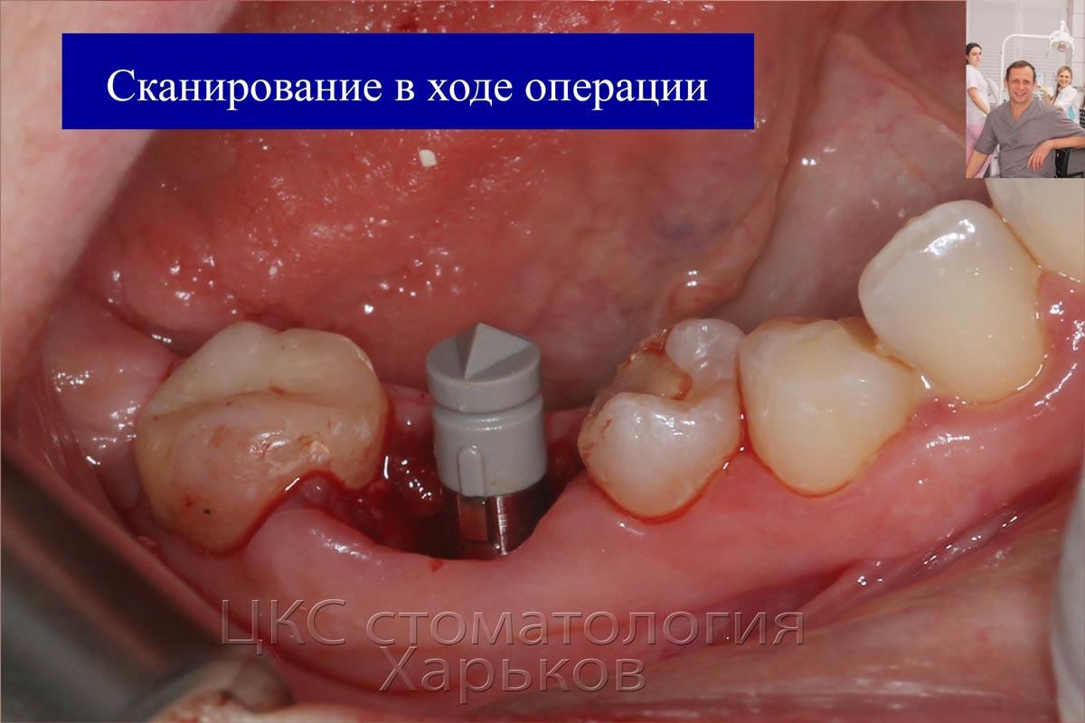 Получение цифровой модели челюсти в ходе операции