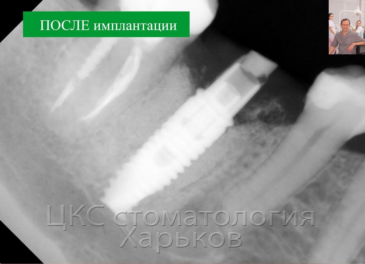 Рентгенограмма после проведения немедленной имплантации