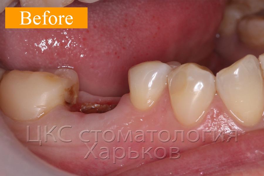 Разрушен жевательный зуб и лечению не подлежит