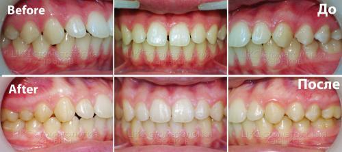 Фото прикуса пациента до и после лечения брекетами