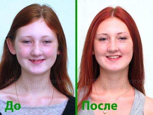 Фото лица ДО и ПОСЛЕ лечения брекетами