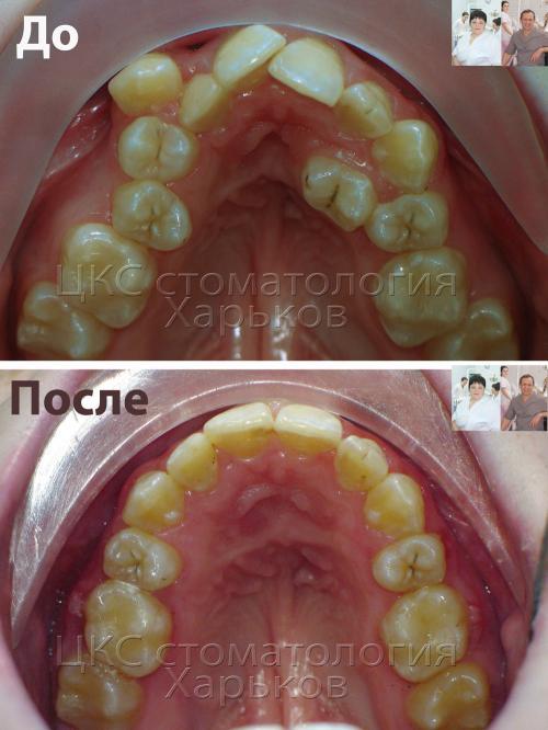 Форма зубного ряда ДО и ПОСЛЕ брекетов