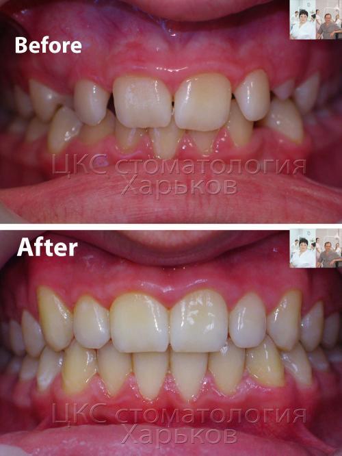 Фотография зубов до и после лечения