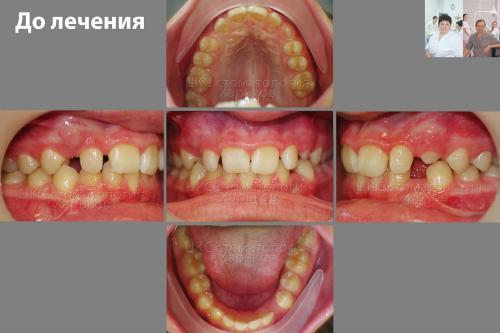 Прикус ДО лечения брекетами, фото