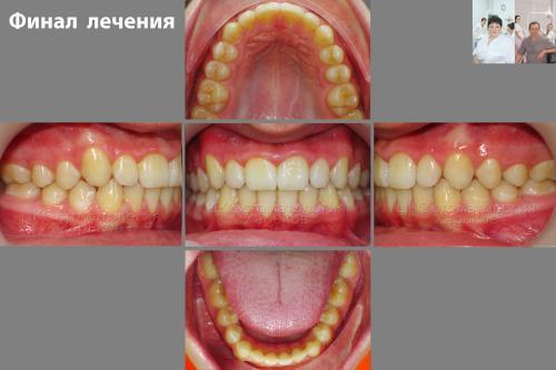 Результат лечения брекетами