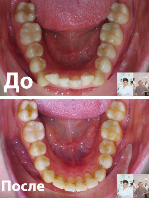 Фото верхней челюсти пациента до и после лечения