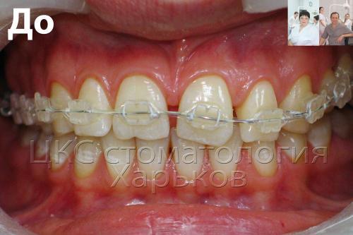 Неровные передний зубной ряд с брекетами