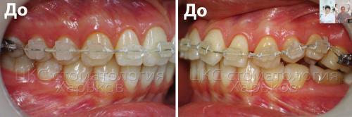 Верхний зубной ряд до лечения