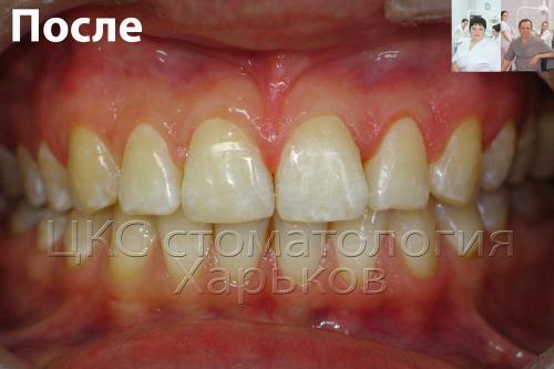 Красивая улыбка пациента после лечения