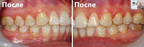 Ровные зубы и ортогнатический прикус ПОСЛЕ брекетов