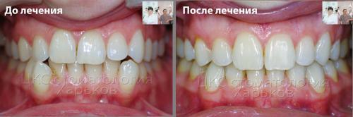 Средняя линия ДО и ПОСЛЕ ортодонтического лечения
