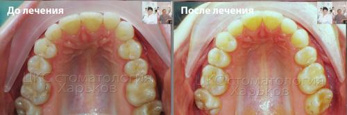форма зубного ряда до и после лечения