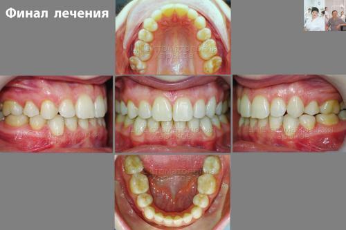 Прикус ПОСЛЕ ортодонтического лечения
