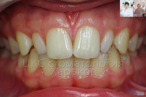 До брекетов зубы неровные и неправильной формы