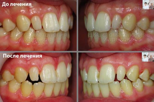 Фото до и после ортодонтического этапа лечения