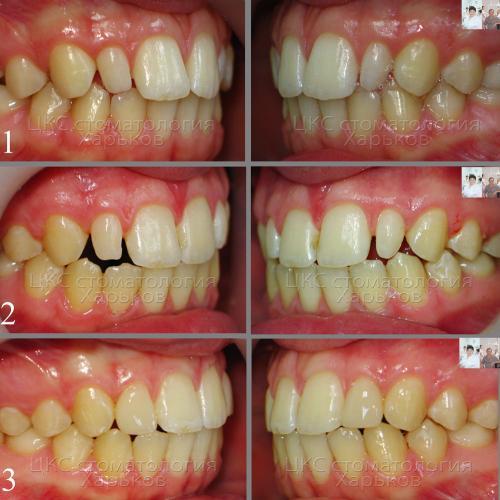 Фото до и после реставрационного этапа лечения