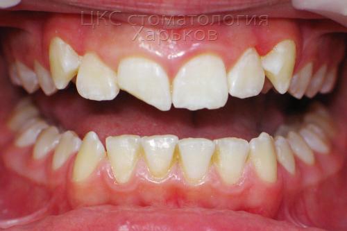 Фото зубов имеющих сколы, до брекетов
