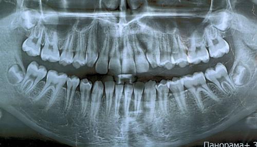 Панорамный снимок пациента имеющих сколы, до брекетов