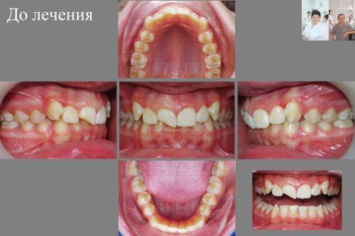 Прикус пациента с травмированными зубами , до брекетов