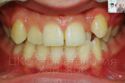 Фото очень неровных зубов до лечения