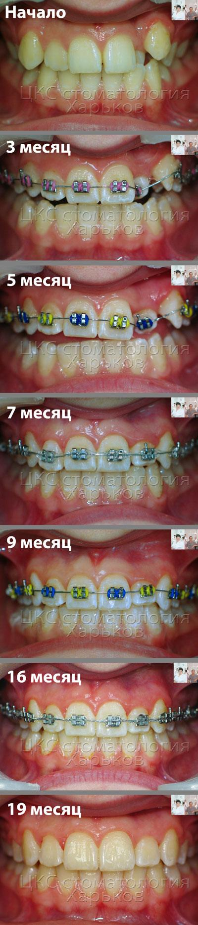 Семь фото на этапах лечения брекетами