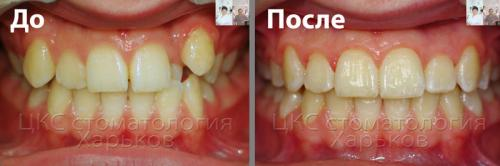 Фото прикуса пациента до и после брекетов