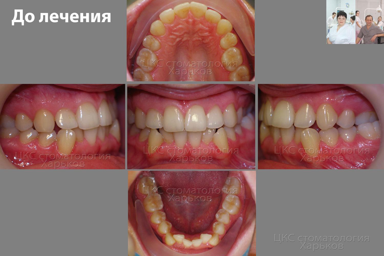 устанавливает количественное после лечения зуба не открывается челюсть изготовление стеклопакета без