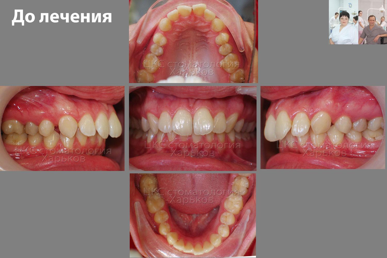 как делают красивые зубы