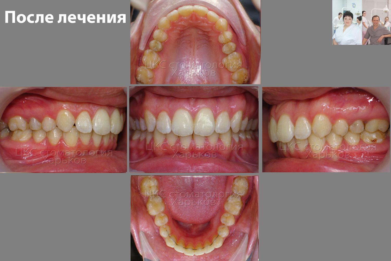 красивые зубы фото до и после керамическая