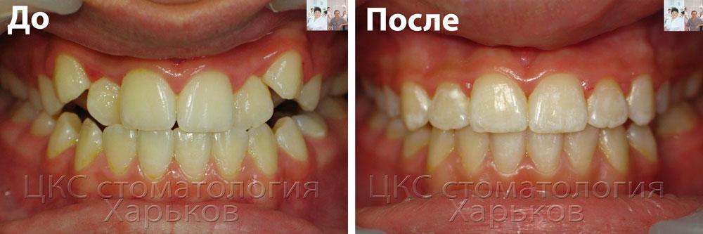 лечение брекетами скученного положения зубов