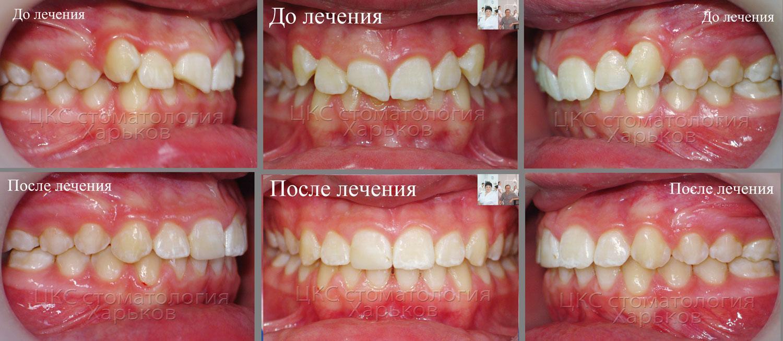 Фото прикуса до и после лечения брекетами